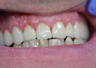 Novosti u stomatologiji