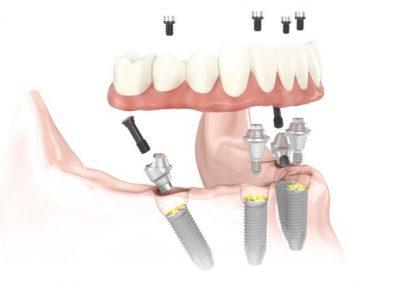 Dentalni implantati